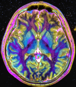 """Max contrast Brain MRI 131058 rgbce"" by Nevit Dilmen (talk) - Own work."